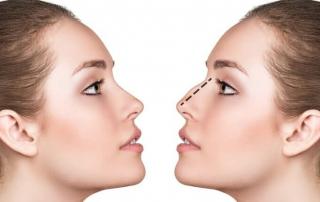 cirugia de nariz en Leon