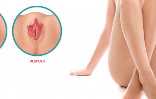 Labioplastia en León