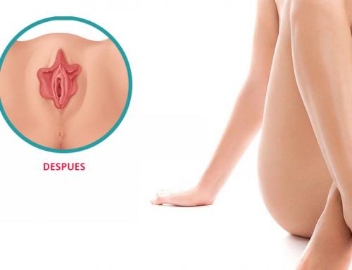 ¿Qué es la labioplastia?: despeja todas las dudas sobre este procedimiento