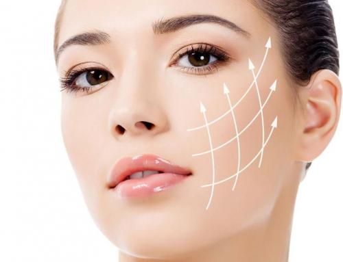 Características del estiramiento facial con hilos rusos