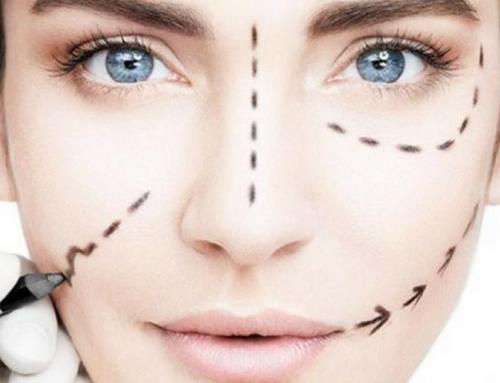 Principales beneficios del tratamiento de estiramiento facial con hilos rusos