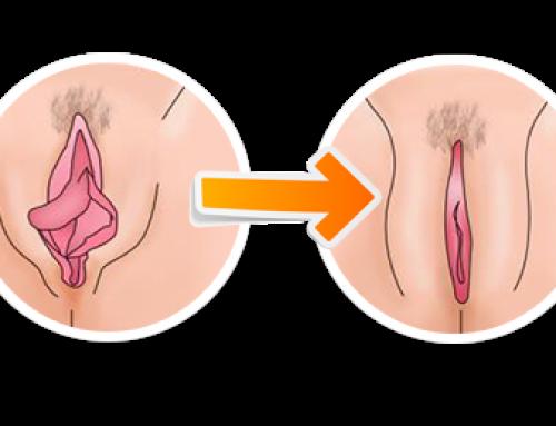 8 Preguntas frecuentes sobre la labioplastia