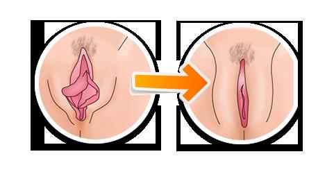 labioplastia en Leon