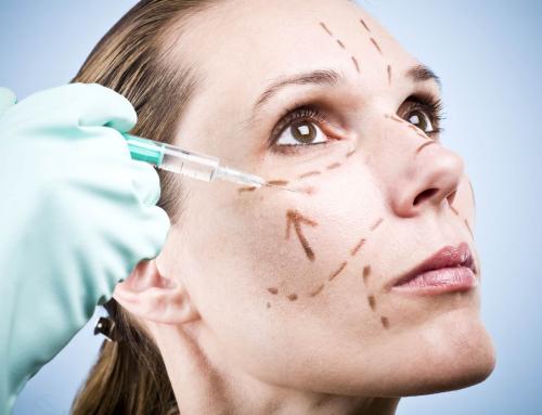 Liposucción vs. Lipoescultura ¿Cuál es la diferencia?