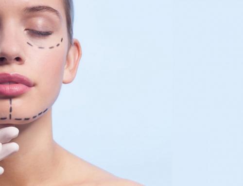 Conozcan los 3 tipos más populares de rejuvenecimiento facial