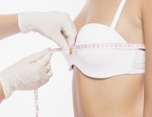¿Reconstrucción mamaria? Clínica Rêve es la opción