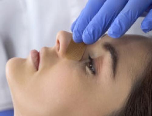 Conozcan la importancia de las válvulas nasales en la rinoplastia