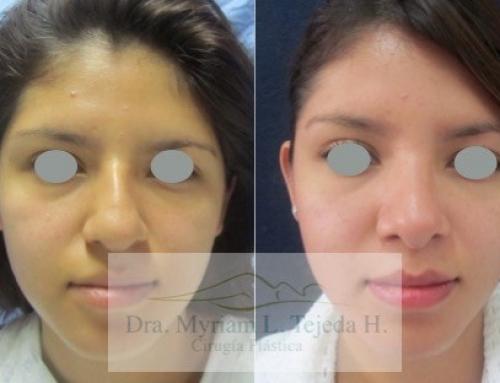 ¿Qué cambios se pueden realizar con una cirugía de nariz?