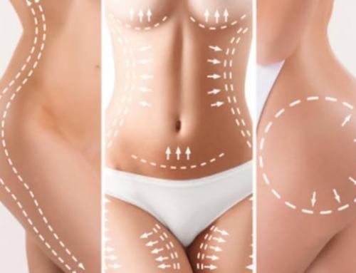 Cirugía plástica: más allá del aspecto físico