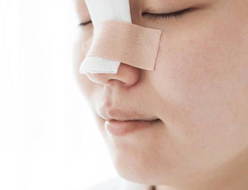 Rinoseptoplastia: funcionalidad y estética en una sola cirugía de nariz