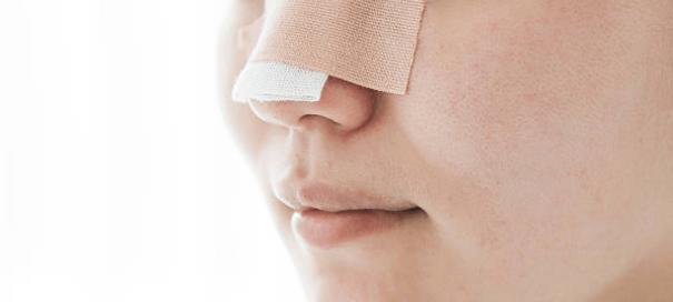 cirugía de nariz en León