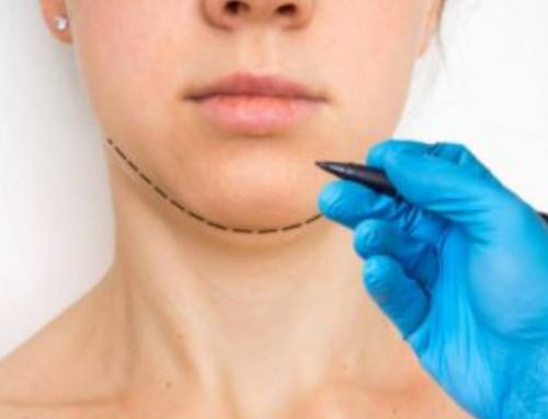¿Cuál es el procedimiento de implante de mentón?