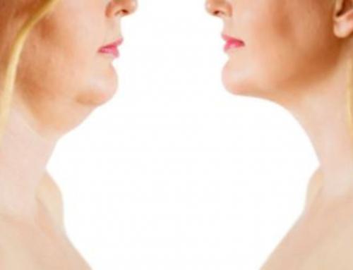 Liposucción de cuello o estiramiento de cuello