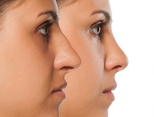 ¿Por qué realizarse una cirugía de nariz?