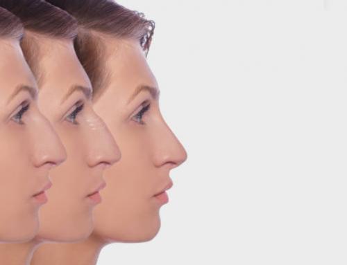 Tipos de nariz y cuales necesitan una cirugía