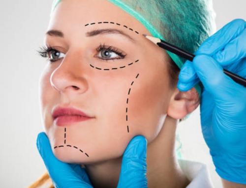 ¿Todo el mundo se puede hacer una cirugía plástica?