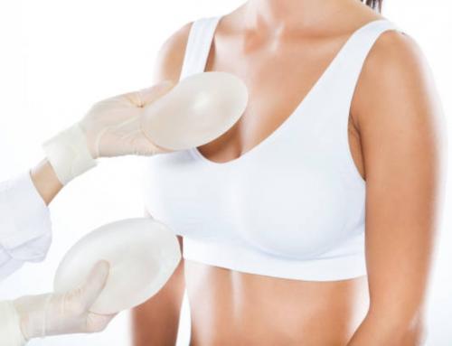 ¿Qué es la cirugía de levantamiento de senos con implantes?